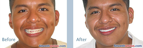 Victoria TX dentist | Six Month Smiles Before and After